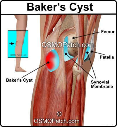 baker cyst manual treatment naturally